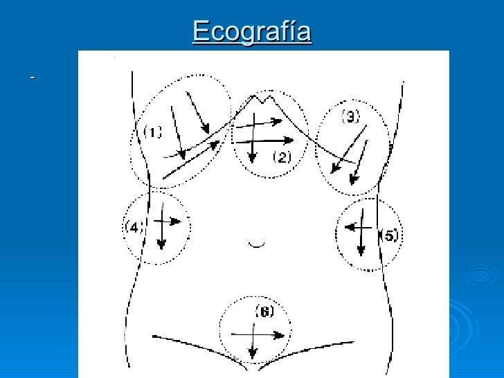 Ecografía <ul><li>- </li></ul>