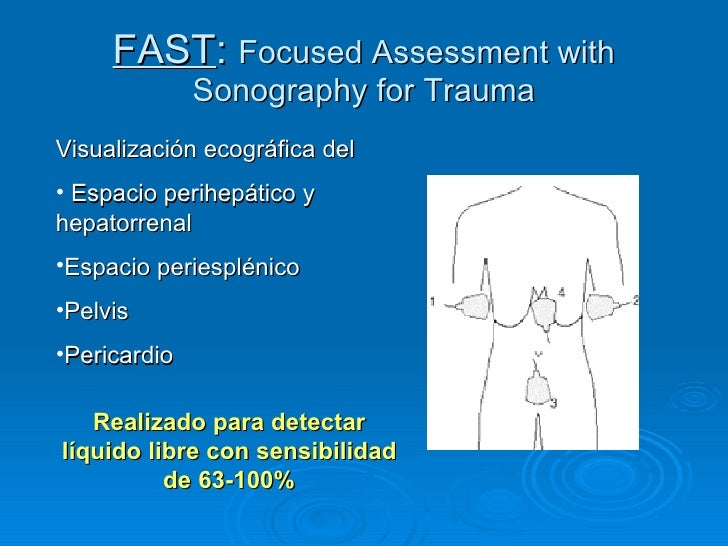FAST :  Focused Assessment with Sonography for Trauma <ul><li>Visualización ecográfica del  </li></ul><ul><li>Espacio peri...