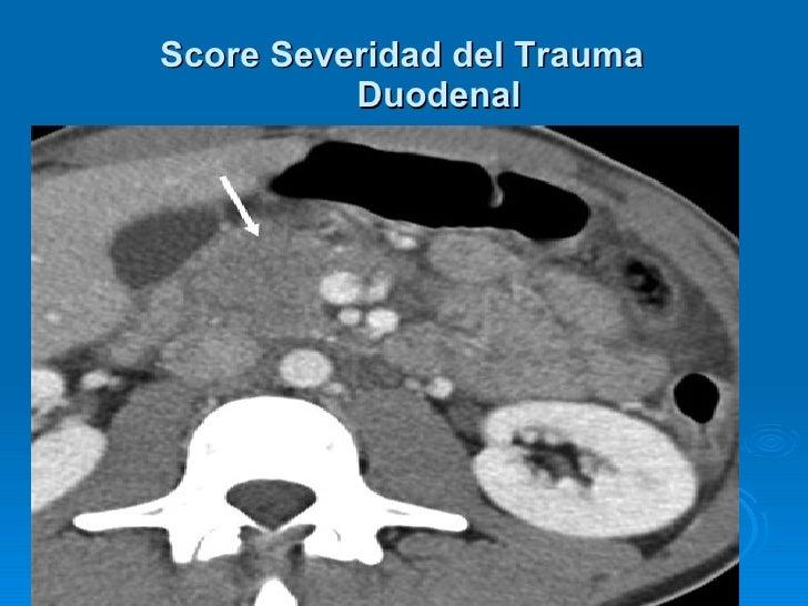 <ul><ul><li>. </li></ul></ul>Score Severidad del Trauma Duodenal