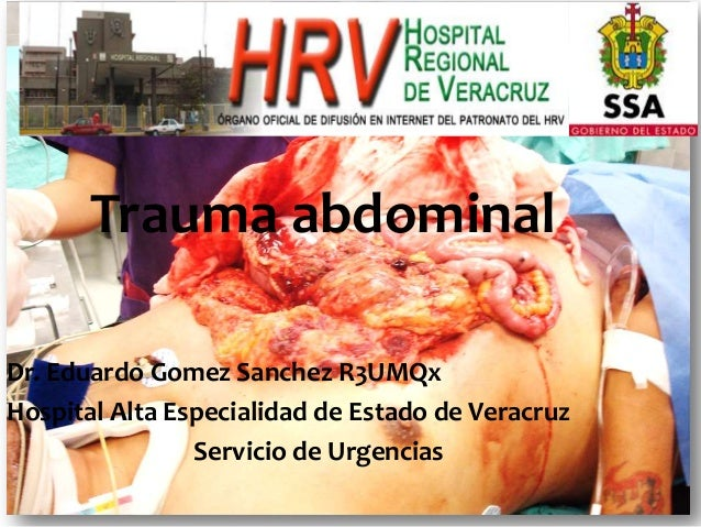 Trauma abdominal Dr. Eduardo Gomez Sanchez R3UMQx Hospital Alta Especialidad de Estado de Veracruz Servicio de Urgencias