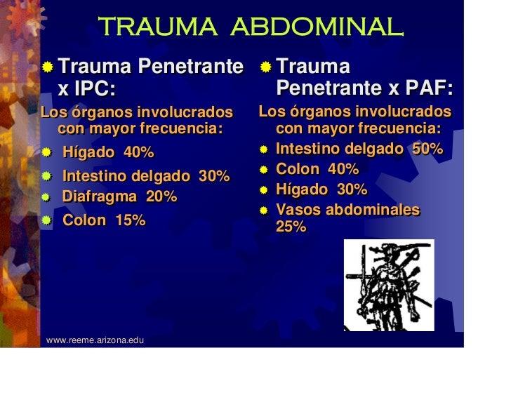 Abdominaltrauma
