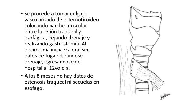 Trauma de Cuello - Anatomía de Cuello - Anatomia de Cuello
