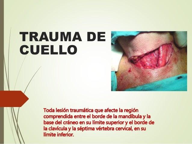 TRAUMA DE CUELLO Toda lesión traumática que afecte la región comprendida entre el borde de la mandíbula y la base del crán...