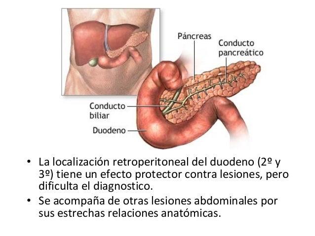 Trauma de duodeno y pancreas
