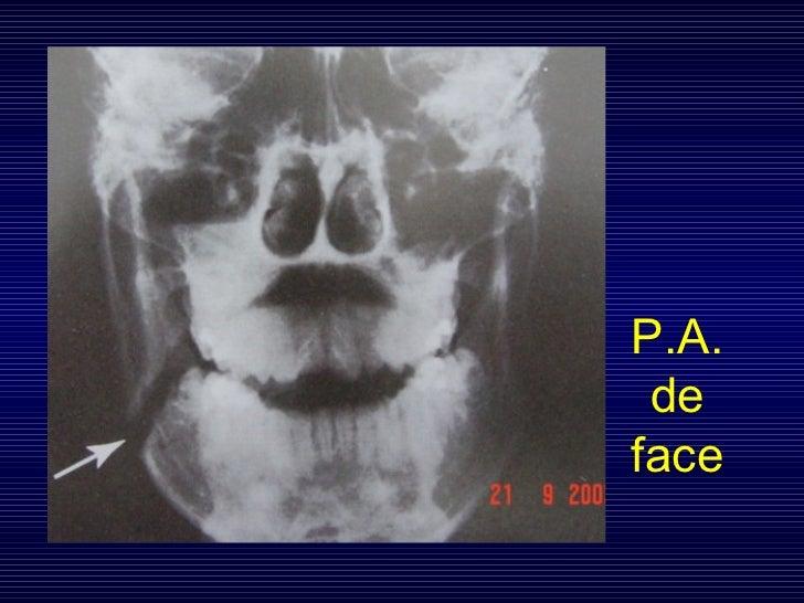 P.A. de face