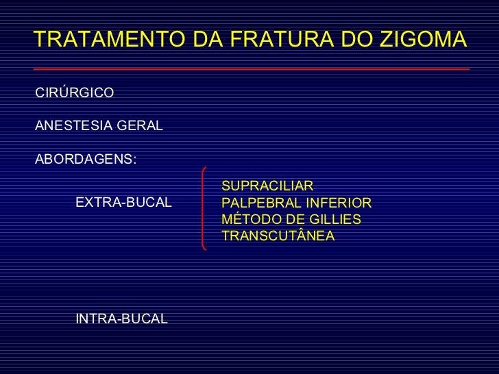 TRATAMENTO DA FRATURA DO ZIGOMA CIRÚRGICO ANESTESIA GERAL ABORDAGENS:  EXTRA-BUCAL INTRA-BUCAL SUPRACILIAR PALPEBRAL INFER...