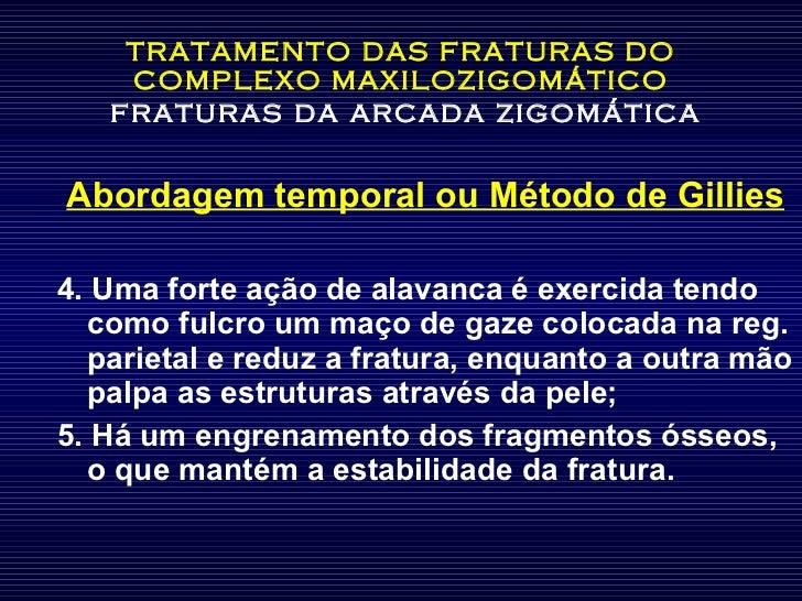 TRATAMENTO DAS FRATURAS DO COMPLEXO MAXILOZIGOMÁTICO   fraturas da arcada zigomática <ul><li>Abordagem temporal ou Método ...