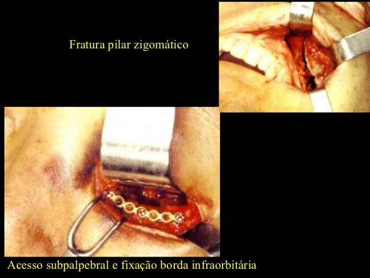 Acesso subpalpebral e fixação borda infraorbitária Fratura pilar zigomático