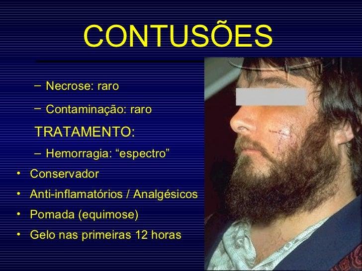 CONTUSÕES <ul><ul><li>Necrose: raro </li></ul></ul><ul><ul><li>Contaminação: raro   </li></ul></ul><ul><ul><li>TRATAMENTO:...