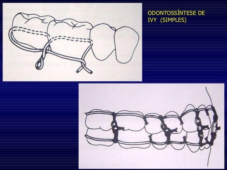ODONTOSSÍNTESE DE IVY  (SIMPLES)