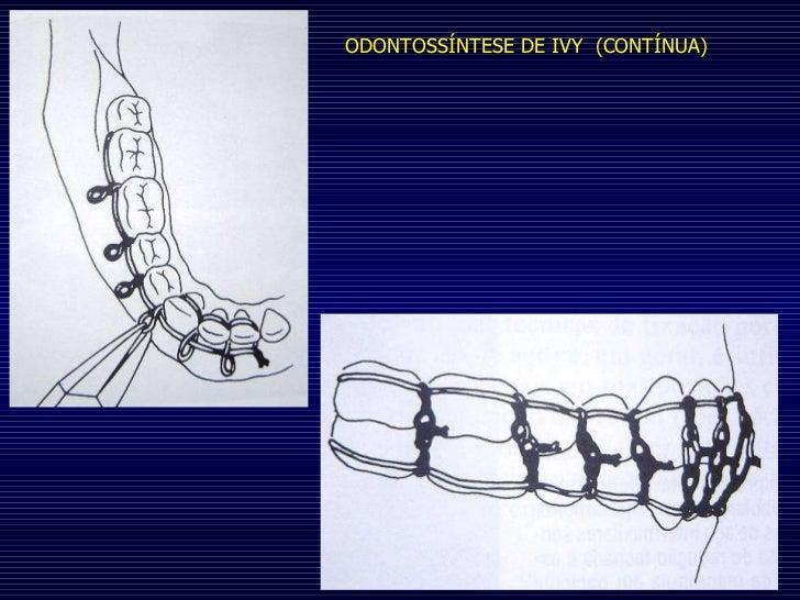 ODONTOSSÍNTESE DE IVY  (CONTÍNUA)