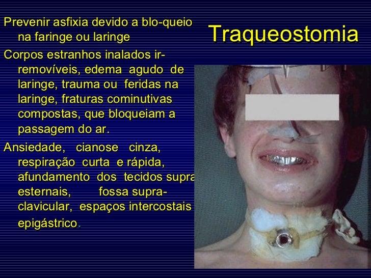 Traqueostomia Prevenir asfixia devido a blo-queio na faringe ou laringe Corpos estranhos inalados ir-removíveis, edema  ag...