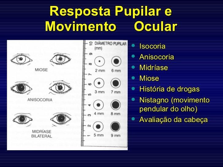 Resposta Pupilar e Movimento  Ocular <ul><li>Isocoria </li></ul><ul><li>Anisocoria </li></ul><ul><li>Midríase </li></ul><u...