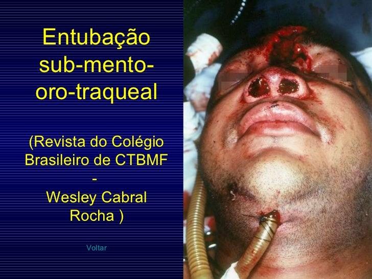 Entubação sub-mento-oro-traqueal (Revista do Colégio Brasileiro de CTBMF -  Wesley Cabral Rocha ) Voltar