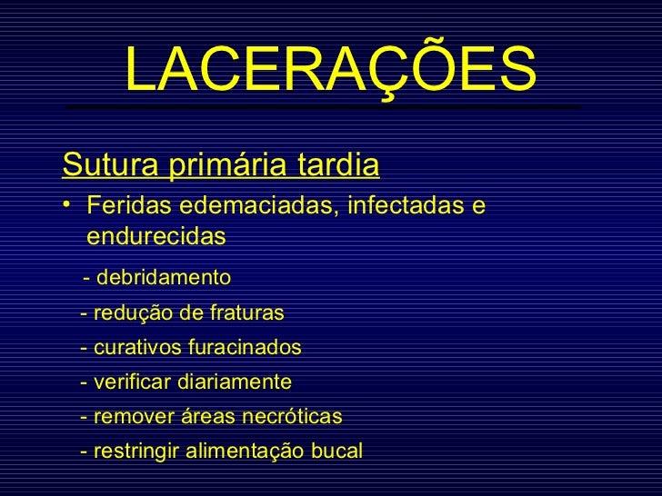 LACERAÇÕES <ul><li>Sutura primária tardia </li></ul><ul><li>Feridas edemaciadas, infectadas e endurecidas </li></ul><ul><l...