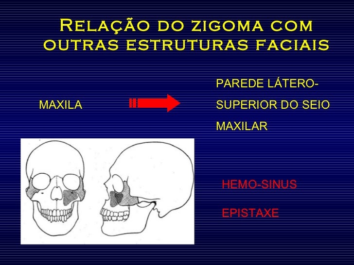 Relação do zigoma com outras estruturas faciais PAREDE LÁTERO- MAXILA  SUPERIOR DO SEIO MAXILAR HEMO-SINUS EPISTAXE