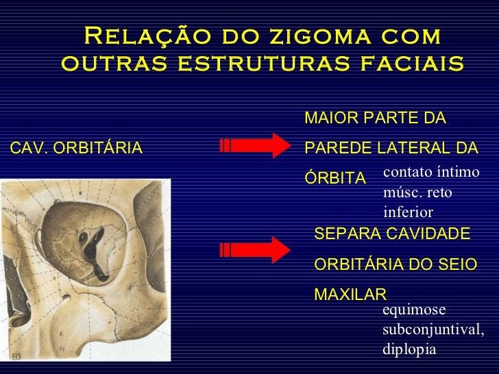 Relação do zigoma com outras estruturas faciais MAIOR PARTE DA  CAV. ORBITÁRIA   PAREDE LATERAL DA ÓRBITA contato íntimo m...
