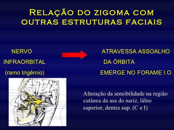Relação do zigoma com outras estruturas faciais NERVO   ATRAVESSA ASSOALHO INFRAORBITAL   DA ÓRBITA (ramo trigêmio)   EMER...