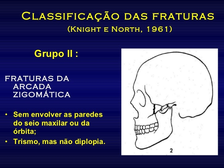Classificação das fraturas   (Knight e North, 1961) <ul><li>Grupo II : </li></ul><ul><li>FRATURAS DA ARCADA ZIGOMÁTICA </l...