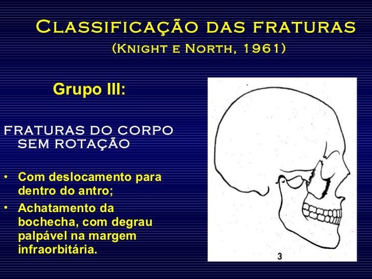 Classificação das fraturas   (Knight e North, 1961) <ul><li>Grupo III: </li></ul><ul><li>FRATURAS DO CORPO SEM ROTAÇÃO </l...