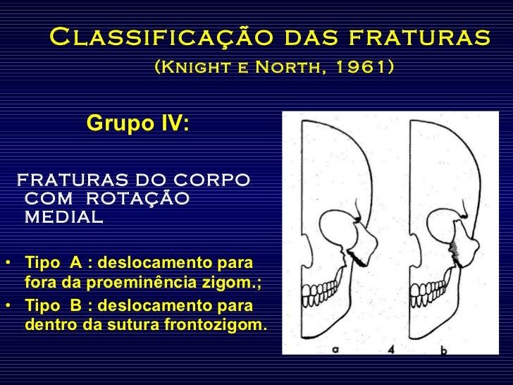 Classificação das fraturas   (Knight e North, 1961) <ul><li>Grupo IV: </li></ul><ul><li>FRATURAS DO CORPO COM  ROTAÇÃO MED...