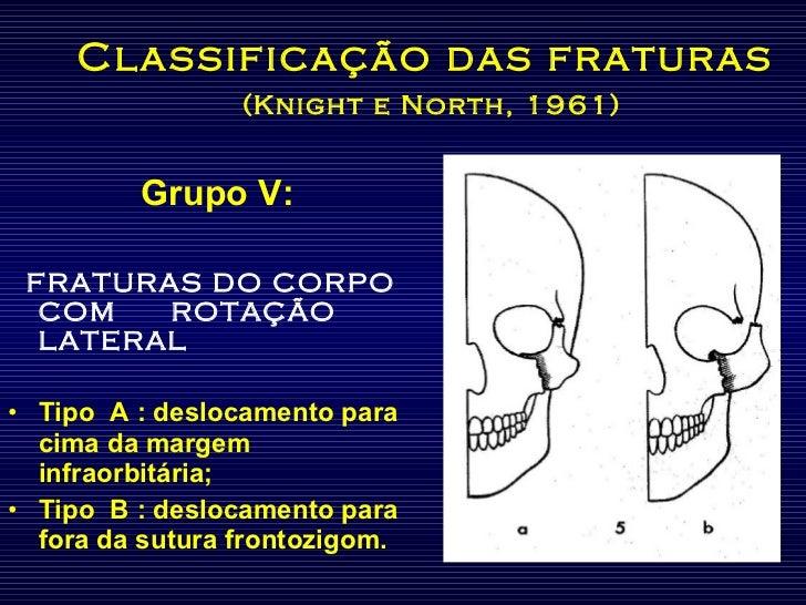 Classificação das fraturas   (Knight e North, 1961) <ul><li>Grupo V: </li></ul><ul><li>FRATURAS DO CORPO COM  ROTAÇÃO LATE...