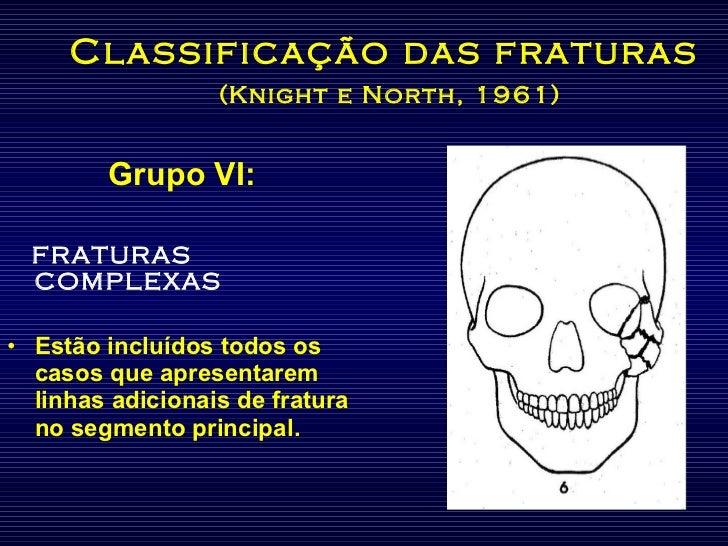 Classificação das fraturas   (Knight e North, 1961) <ul><li>Grupo VI: </li></ul><ul><li>FRATURAS COMPLEXAS </li></ul><ul><...