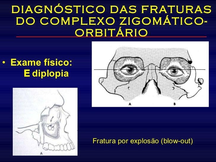 DIAGNÓSTICO DAS FRATURAS DO COMPLEXO ZIGOMÁTICO-ORBITÁRIO <ul><li>Exame físico:    diplopia </li></ul>Fratura por explosã...