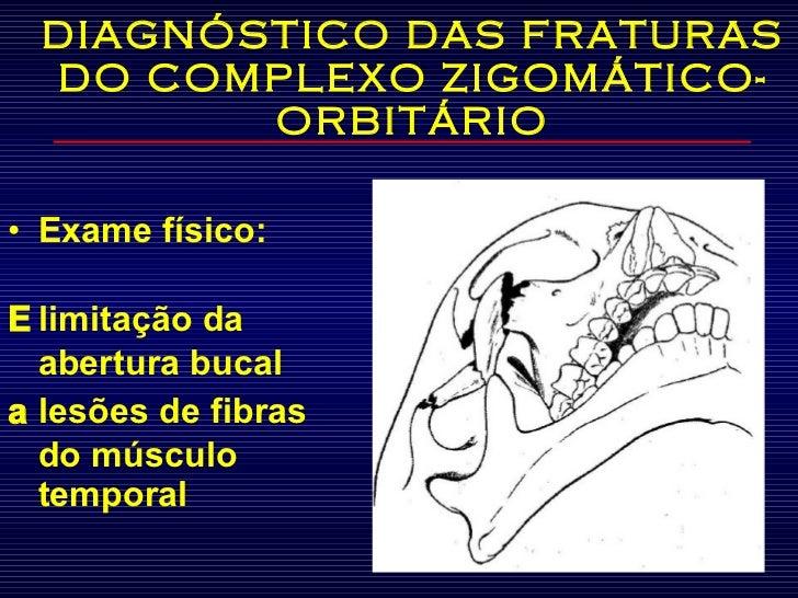 DIAGNÓSTICO DAS FRATURAS DO COMPLEXO ZIGOMÁTICO-ORBITÁRIO <ul><li>Exame físico:  </li></ul><ul><li>   limitação da abertu...