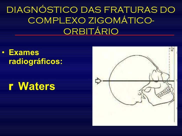 <ul><li>Exames radiográficos:  </li></ul><ul><li>   Waters </li></ul>DIAGNÓSTICO DAS FRATURAS DO COMPLEXO ZIGOMÁTICO-ORBI...