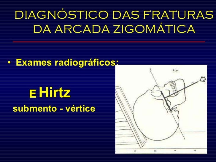 <ul><li>Exames radiográficos:  </li></ul><ul><li>   Hirtz </li></ul><ul><li>submento - vértice </li></ul>DIAGNÓSTICO DAS ...