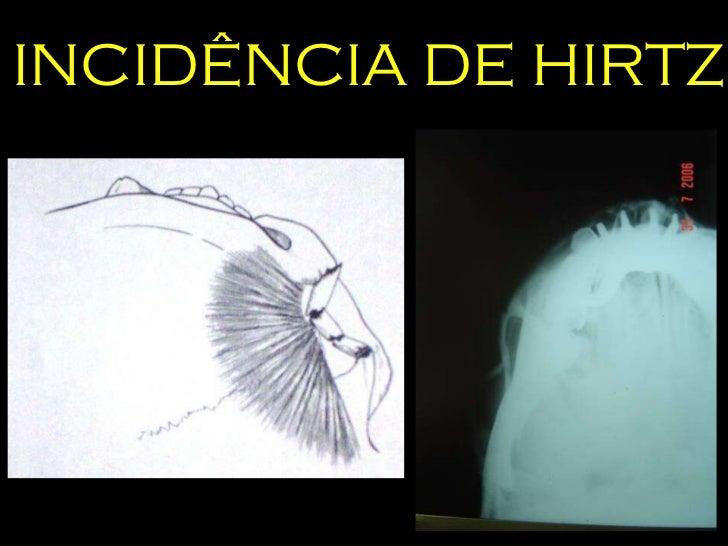 INCIDÊNCIA DE HIRTZ