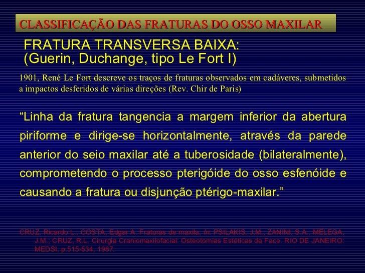 CLASSIFICAÇÃO DAS FRATURAS DO OSSO MAXILAR FRATURA TRANSVERSA BAIXA: (Guerin, Duchange, tipo Le Fort I) 1901, René Le Fort...