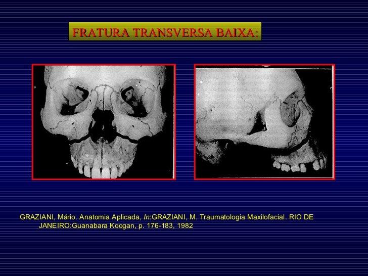 FRATURA TRANSVERSA BAIXA: GRAZIANI, Mário. Anatomia Aplicada,  In :GRAZIANI, M. Traumatologia Maxilofacial. RIO DE JANEIRO...