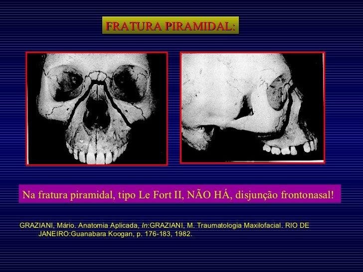 FRATURA PIRAMIDAL: Na fratura piramidal, tipo Le Fort II, NÃO HÁ, disjunção frontonasal!   GRAZIANI, Mário. Anatomia Aplic...