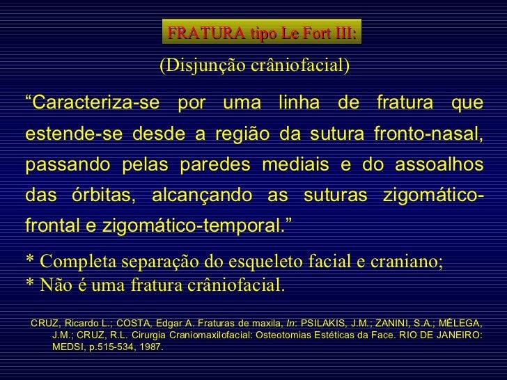 """FRATURA tipo Le Fort III: (Disjunção crâniofacial) """" Caracteriza-se por uma linha de fratura que estende-se desde a região..."""
