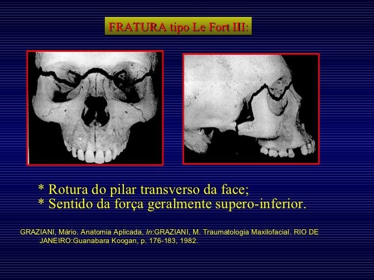 FRATURA tipo Le Fort III: * Rotura do pilar transverso da face; * Sentido da força geralmente supero-inferior. GRAZIANI, M...