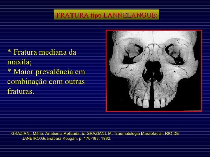 FRATURA tipo LANNELANGUE: GRAZIANI, Mário. Anatomia Aplicada,  In :GRAZIANI, M. Traumatologia Maxilofacial. RIO DE JANEIRO...