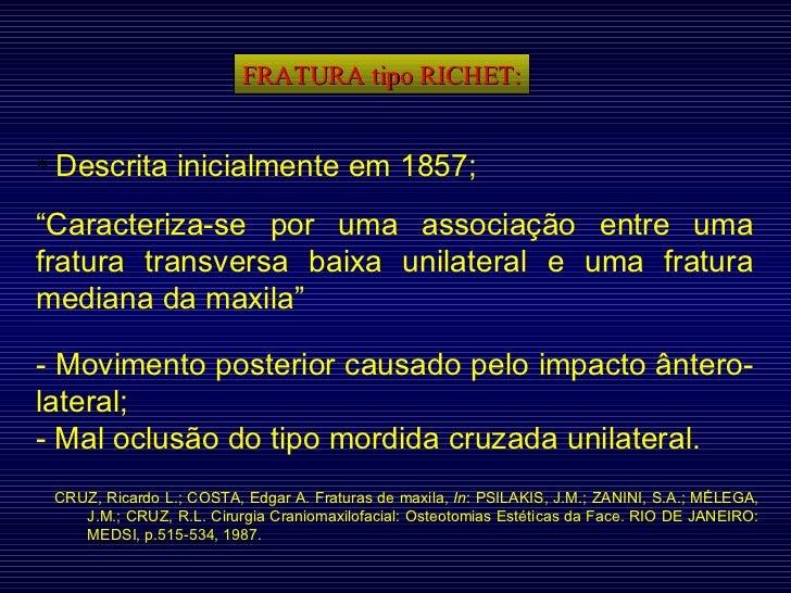"""FRATURA tipo RICHET: *  Descrita inicialmente em 1857; """" Caracteriza-se por uma associação entre uma fratura transversa ba..."""