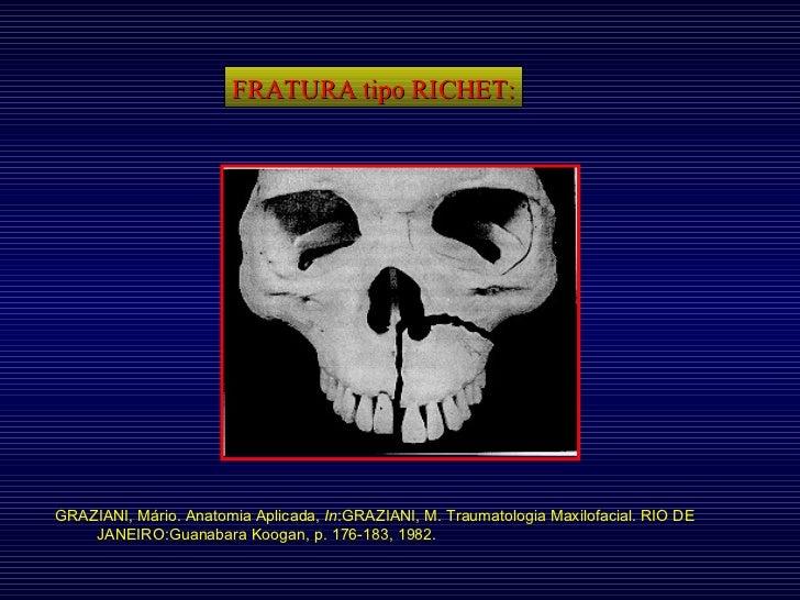 FRATURA tipo RICHET: GRAZIANI, Mário. Anatomia Aplicada,  In :GRAZIANI, M. Traumatologia Maxilofacial. RIO DE JANEIRO:Guan...