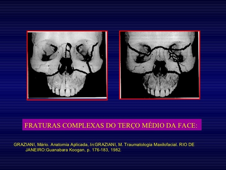 FRATURAS COMPLEXAS DO TERÇO MÉDIO DA FACE:   GRAZIANI, Mário. Anatomia Aplicada,  In :GRAZIANI, M. Traumatologia Maxilofac...