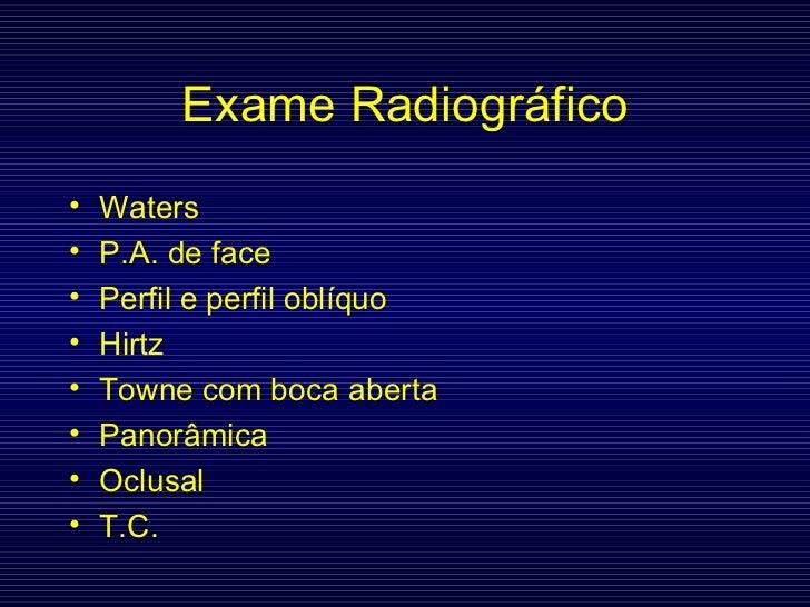 Exame Radiográfico <ul><li>Waters </li></ul><ul><li>P.A. de face </li></ul><ul><li>Perfil e perfil oblíquo </li></ul><ul><...