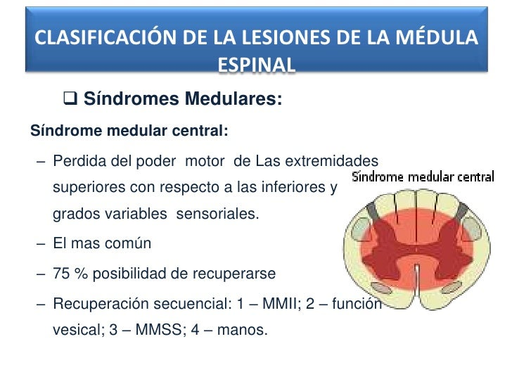 CLASIFICACIÓN DE LA LESIONES DE LA MÉDULA                 ESPINAL     Síndromes Medulares:Síndrome medular central:– Perd...