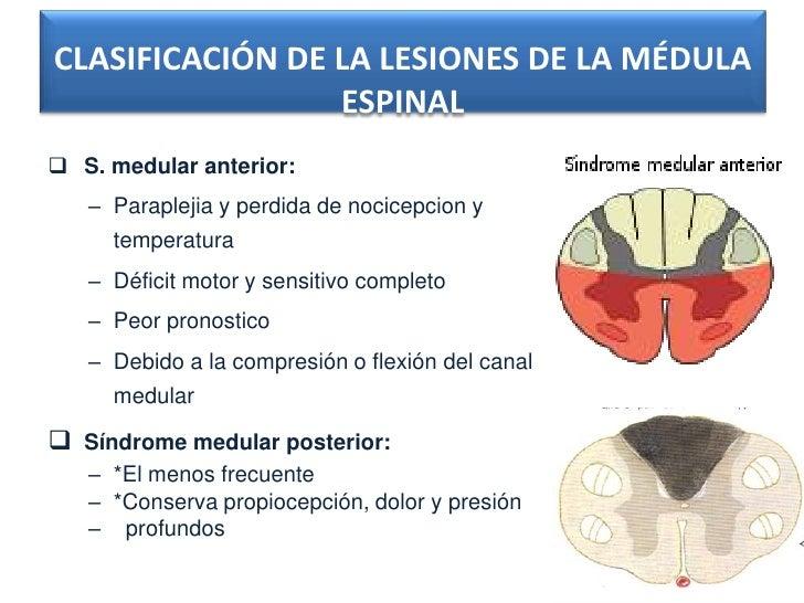 CLASIFICACIÓN DE LA LESIONES DE LA MÉDULA                 ESPINAL S. medular anterior:   – Paraplejia y perdida de nocice...