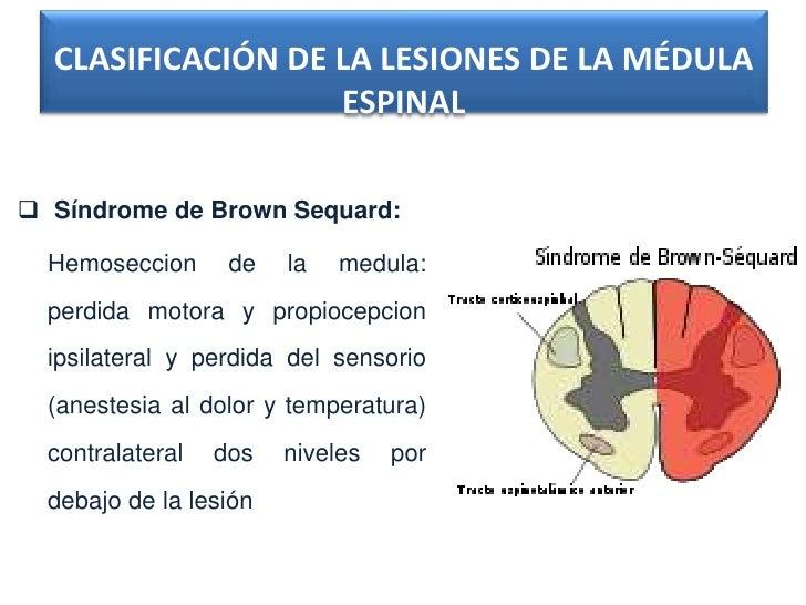 CLASIFICACIÓN DE LA LESIONES DE LA MÉDULA                   ESPINAL Síndrome de Brown Sequard:  Hemoseccion      de   la ...