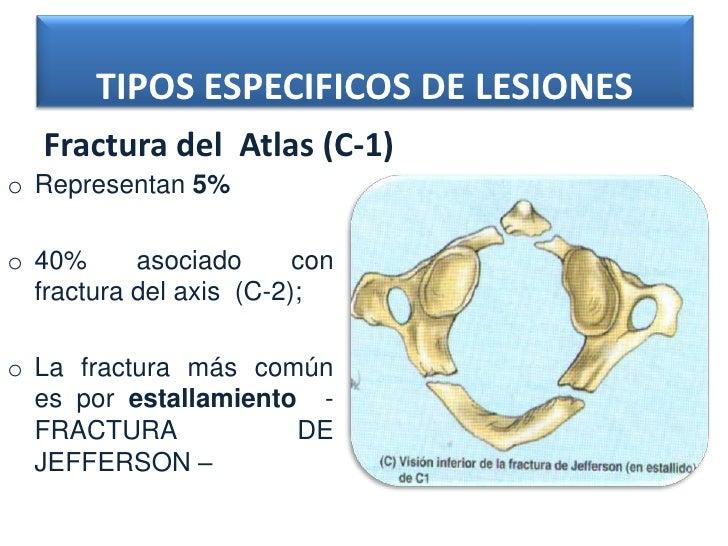 TIPOS ESPECIFICOS DE LESIONES   Fractura del Atlas (C-1)o Representan 5%o 40%      asociado      con  fractura del axis (C...