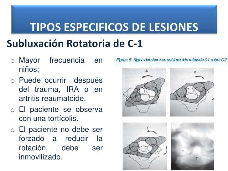 TIPOS ESPECIFICOS DE LESIONESSubluxación Rotatoria de C-1o Mayor frecuencia en  niños;o Puede ocurrir después  del trauma,...