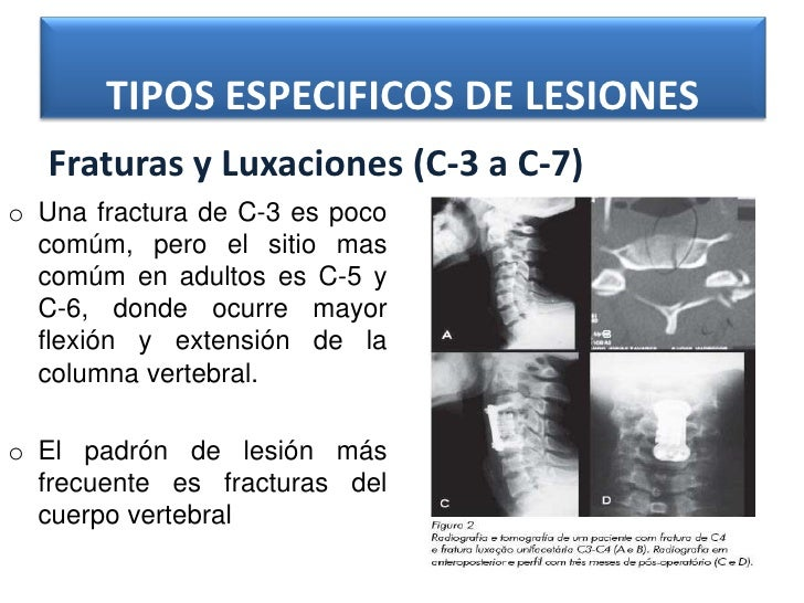 Trauma de la columna vertebral y medula espinal