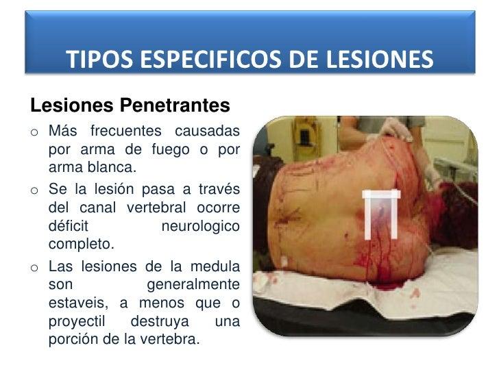 TIPOS ESPECIFICOS DE LESIONESLesiones Penetranteso Más frecuentes causadas  por arma de fuego o por  arma blanca.o Se la l...