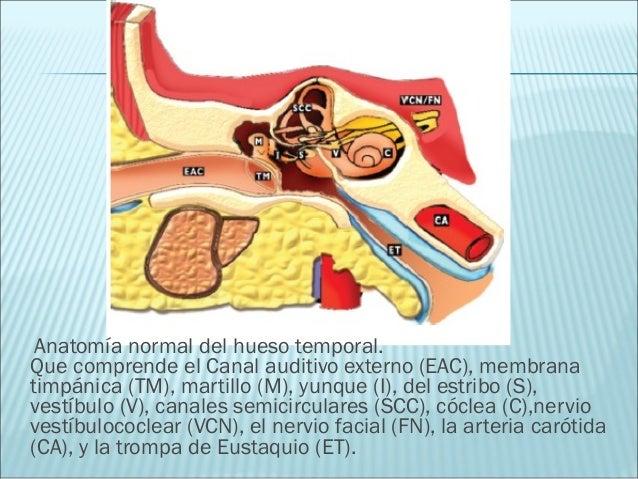 Trauma del hueso temporal y el papel de